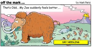 dry-needling-tmd